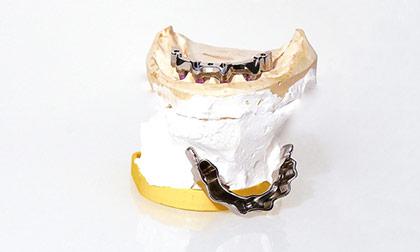 Foto Implantatprothetik